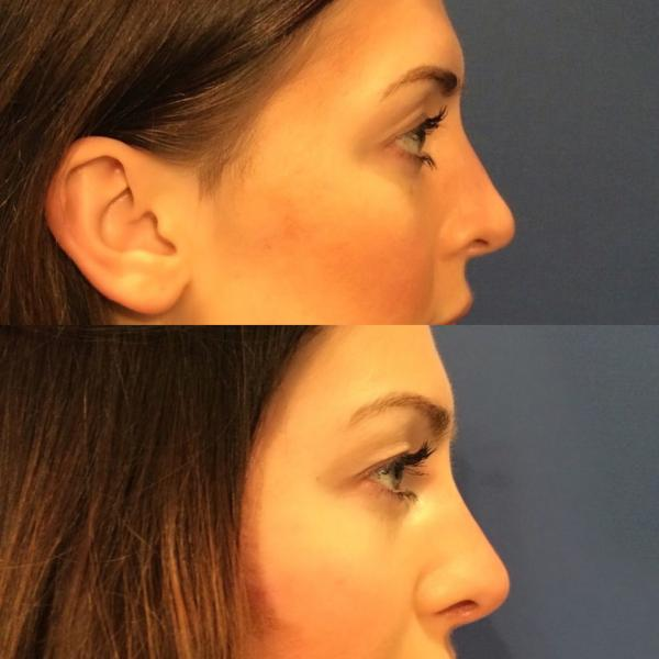 Fillers for your nose? The subtle way to have a nose job
