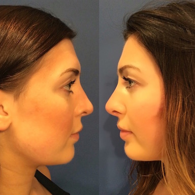 non-surgical the subtle nose job by healthista