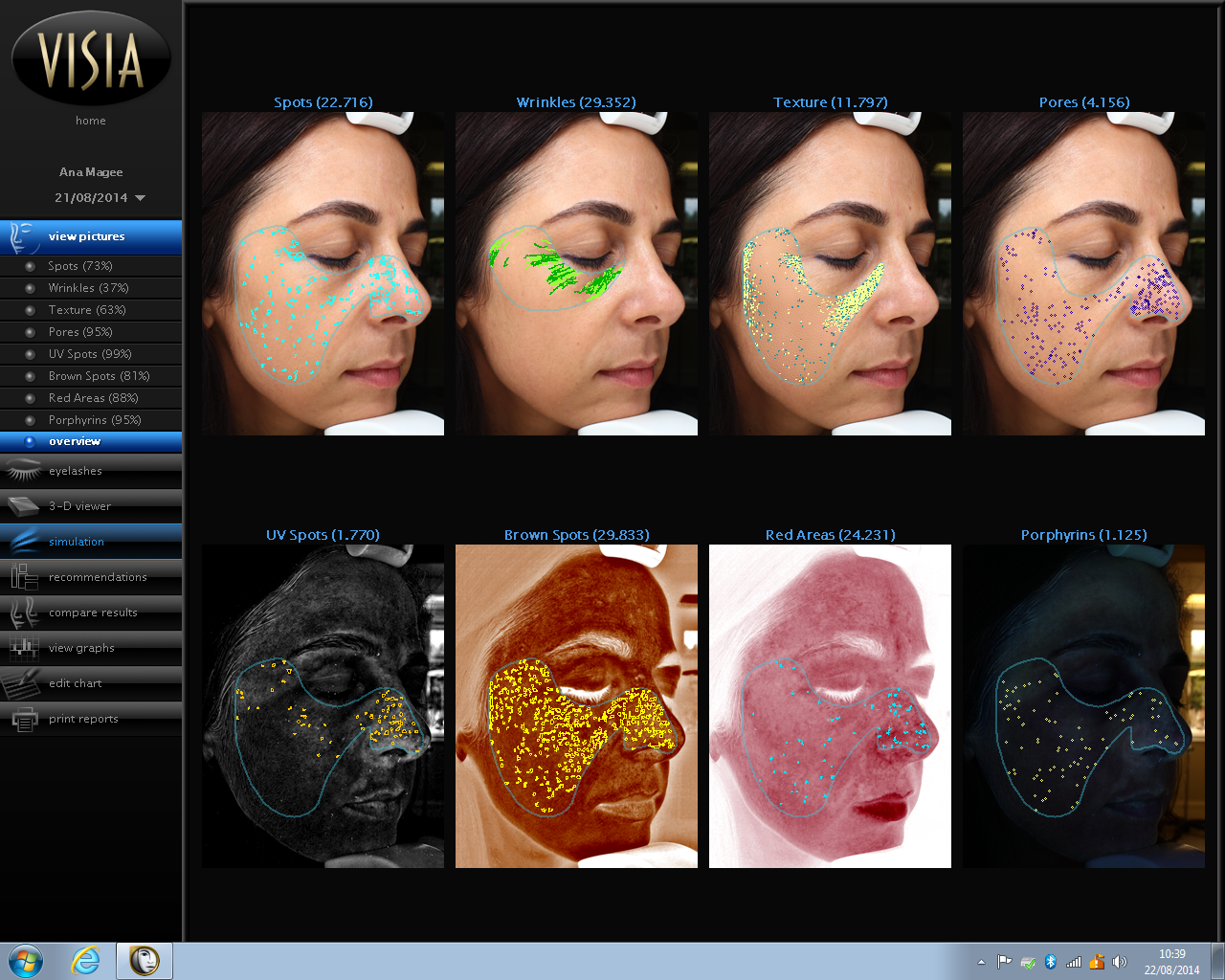 Anna Magee's Visia skin analysis scored all the ways in which her skin is ageing.