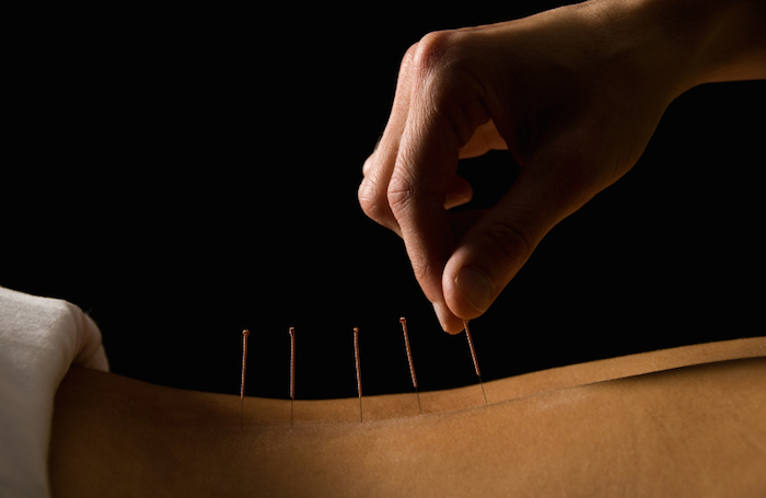 acupunture-lower-back-whats-really-causing-your-lower-back-pain-by-Healthista.com