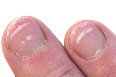 white spots on nails, by Healthista.com