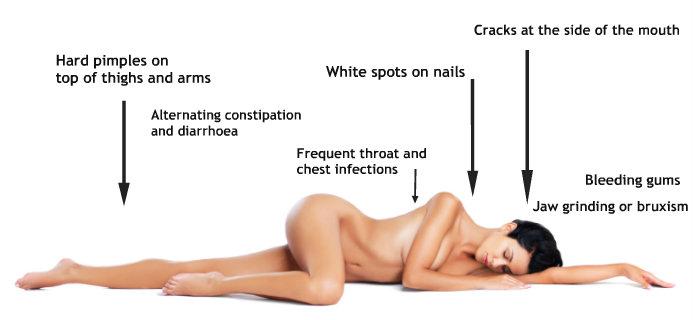 woman lying down, Healthista.com