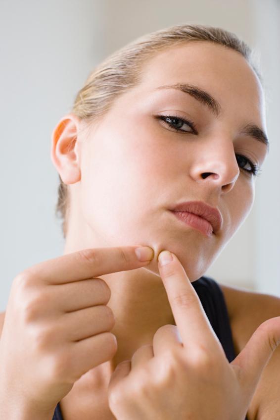 chin acne, face health, by healthista.com