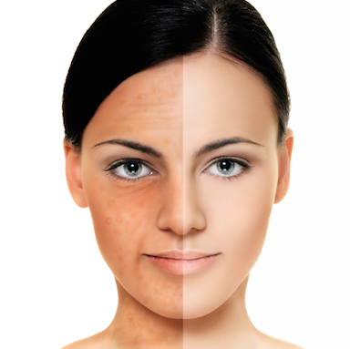 woman-two-shade-face-skin-pigment-changes-by-healthista.com