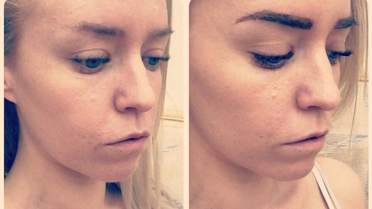before and after, lola brow review, by healthista