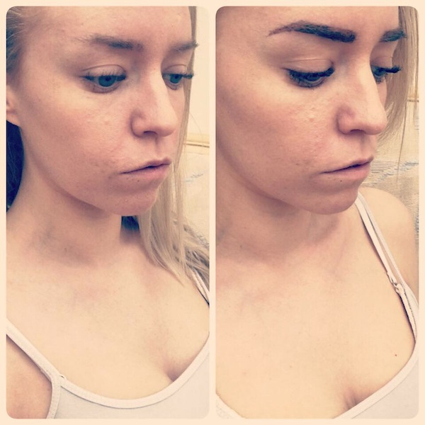 my before and after, lola brow review, by healthista