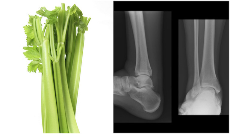 Celery and boneas, foods that look like the body part they're good for, by healthista