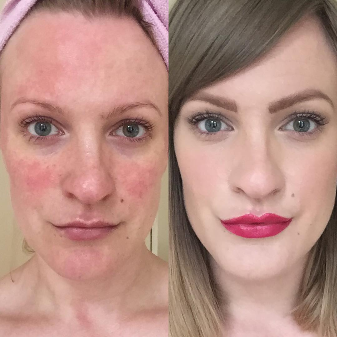 lex gillies, celebs with rosacea, by healthista