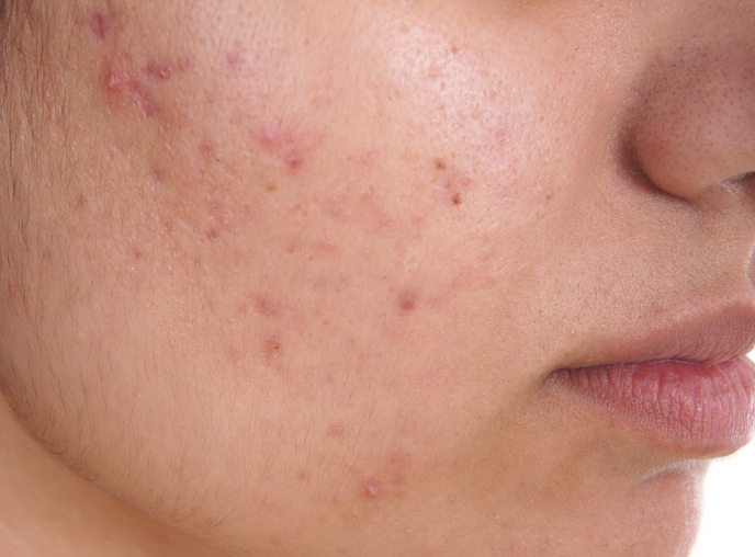 BEST-foods-to-eat-and-foods-to-avoid-for-top-12-common-ailments-acne