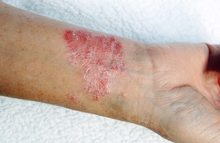 BEST-foods-to-eat-and-foods-to-avoid-for-top-12-common-ailments-psoriasis.
