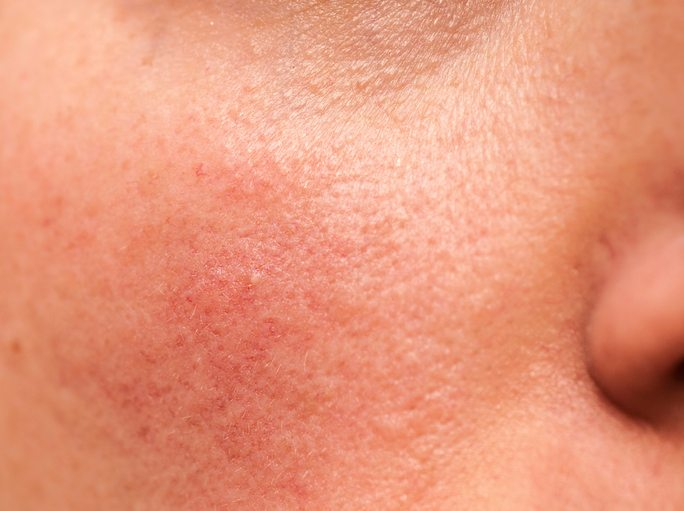 BEST-foods-to-eat-and-foods-to-avoid-for-top-12-common-ailments-rosacea