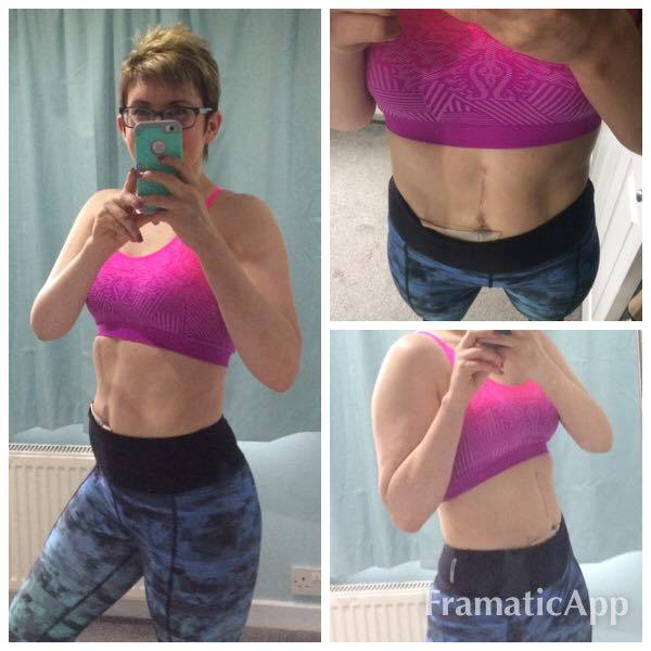 My Bloating Turned Out To Be Ovarian Cancer I Was 30 Healthista