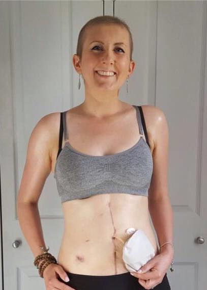 Fiona Munro, My bloating turned out to be ovarian cancer at the age of 30, by healthista (9)
