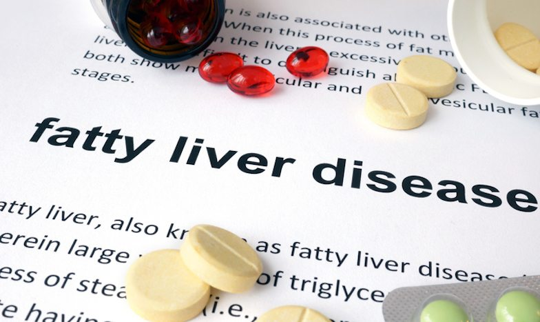 Tired? Bloated? Skin dry and itchy? You might have fatty liver Healthista