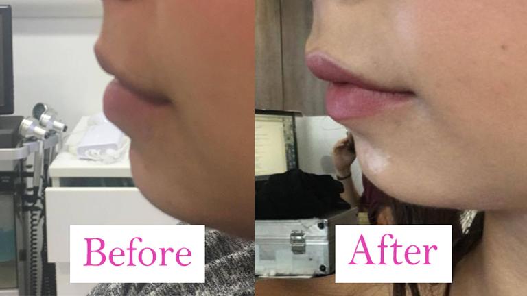 lose weight lips look bigger