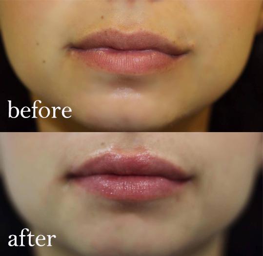 Bumps on lips little White Spots