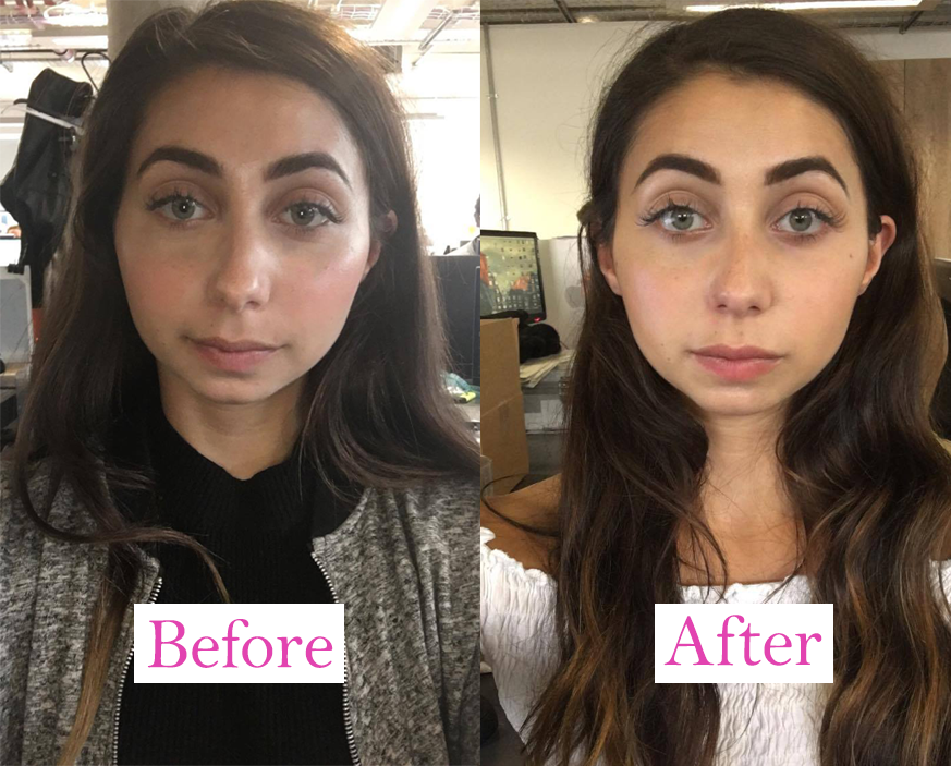 before and after full face 2, I got lip fillers and this is what happened by healthista