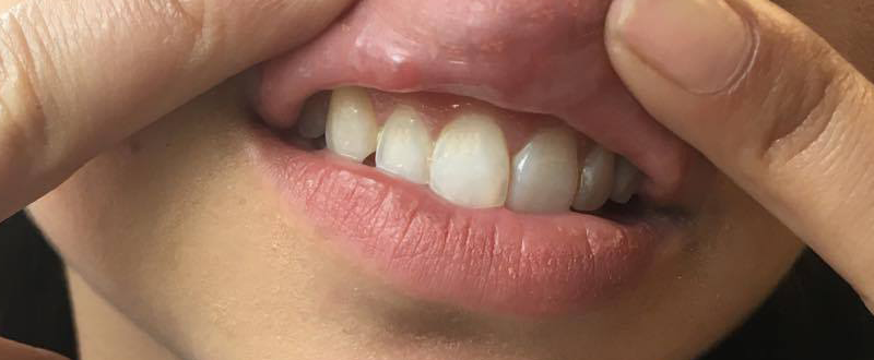 spot underneath lip, I got lip fillers and this is what happened by healthista