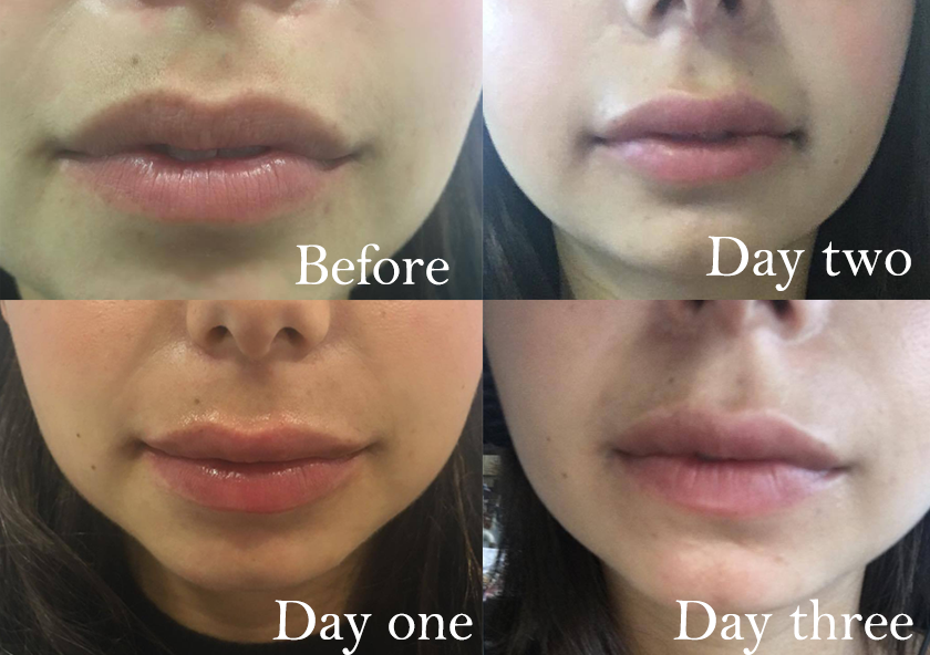 three days transformation, I got lip fillers and this is what happened by healthista