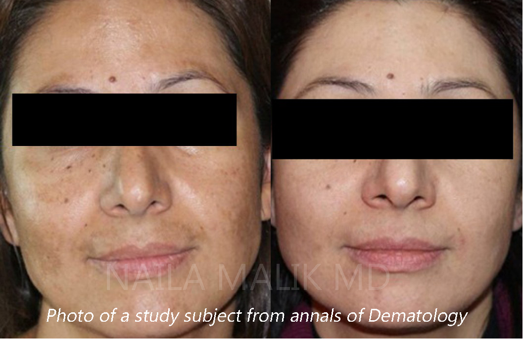 PRP, ask the anti-ageing doctor by healthista.com