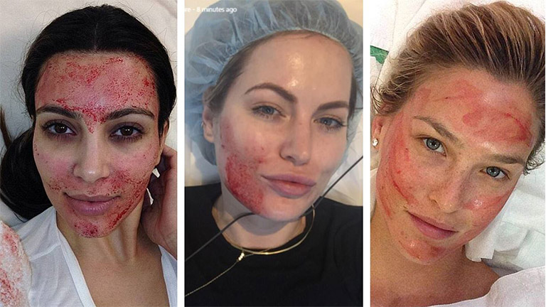 The Vampire facelift these celebrities swear by - the doctor's guide MAIN NEW