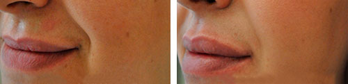 before-and-after-lip-fillers,-what-are-lip-fillers--Ask-the-dermatologist-by-healthista.com