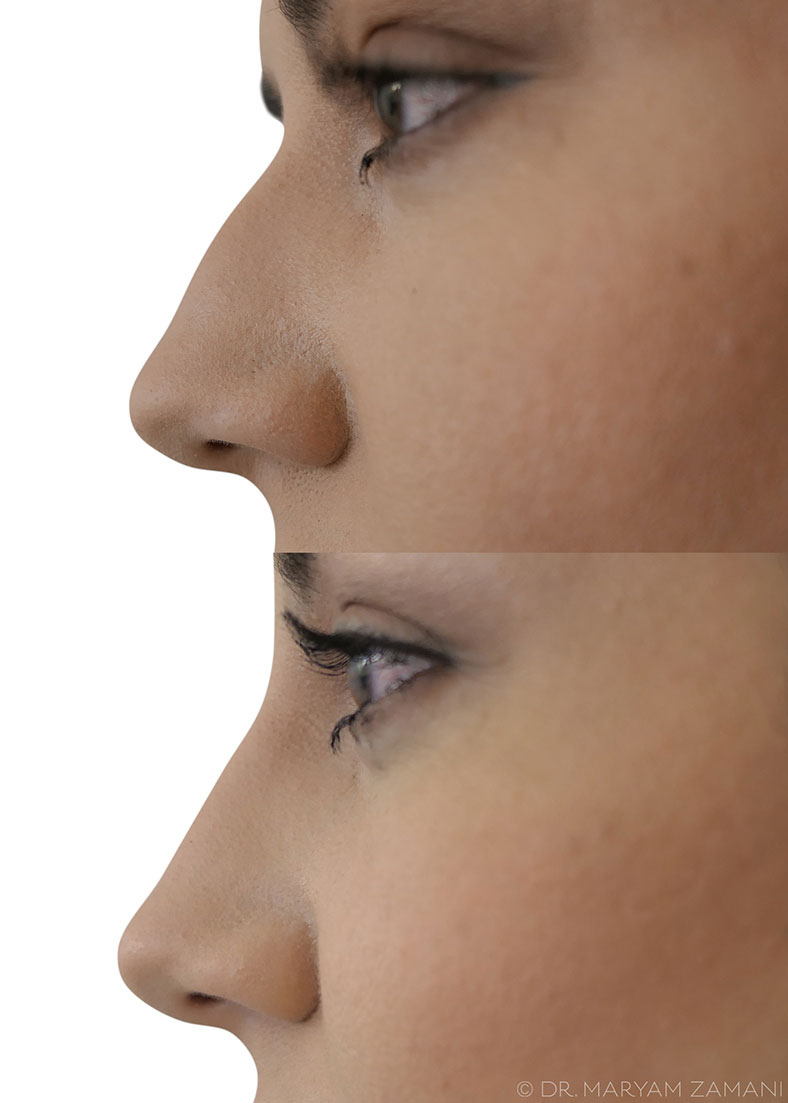 before-and-after-nose-filler,-what-are-nose-fillers--ask-the-dermatologist-by-healthista.com