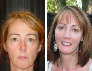 Maureen Reene Before and After Feature non-surgical filler face lift