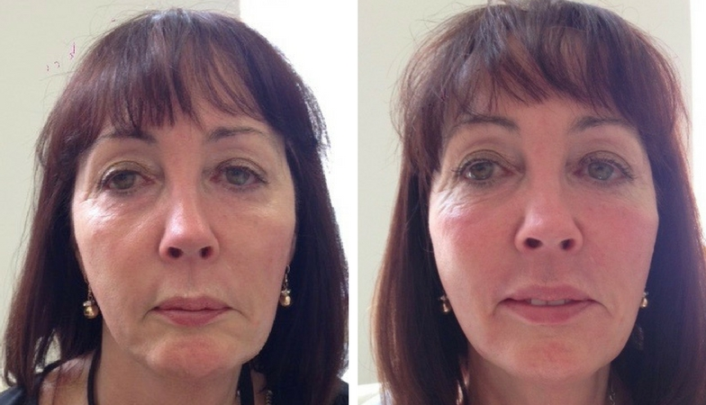 Maureen Reene Before and After