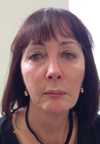 Maureen Reene career facelift