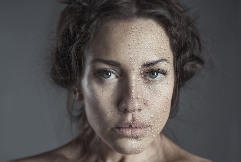 woman-dry-face-signs-yo-need-omega-7-pharmanord-SBA024