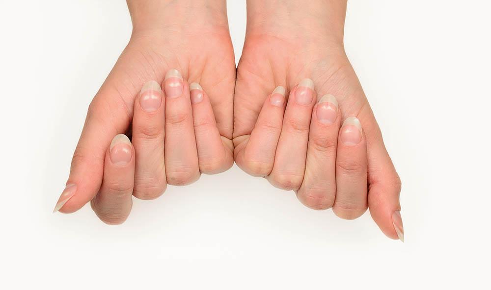 7-signs-you-need-selenium-bad-nails