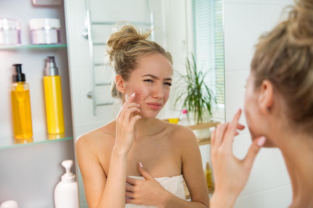7-signs-you-need-selenium-bad-skin