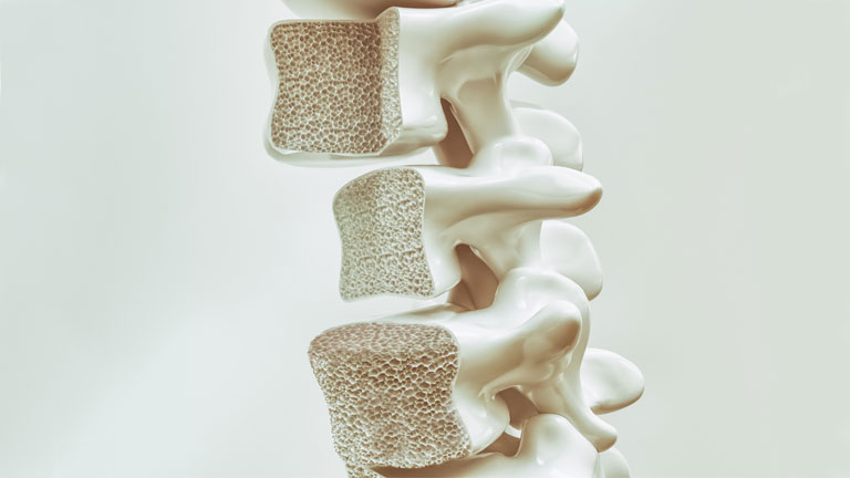 essential nutrients everyone needs osteoporosis,-super-nutrients-for-health-by-healthista.com