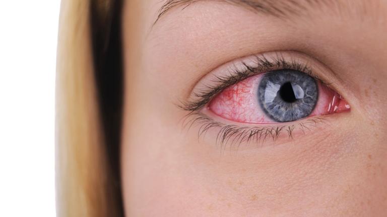 sjogren's syndrome, autoimmune disease, lupus, dr elizabeth price, healthista