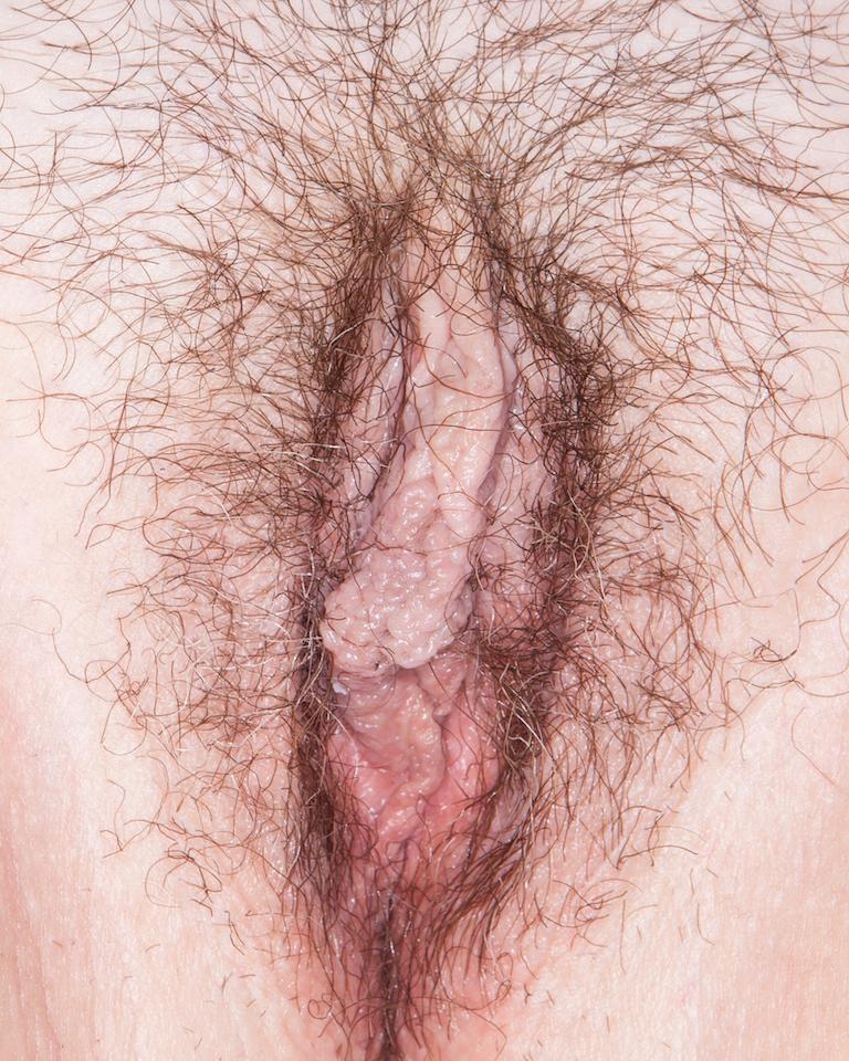 Bliss vulva, 100 vulvas, first in article