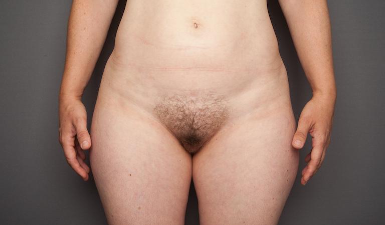 birth front, 100 vulvas, second in article
