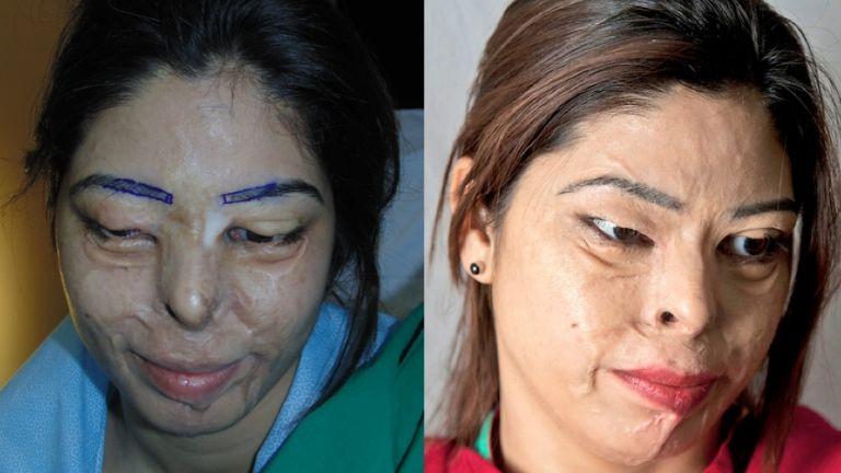 eyelash transplant - acid attack victim - kanwal kashar