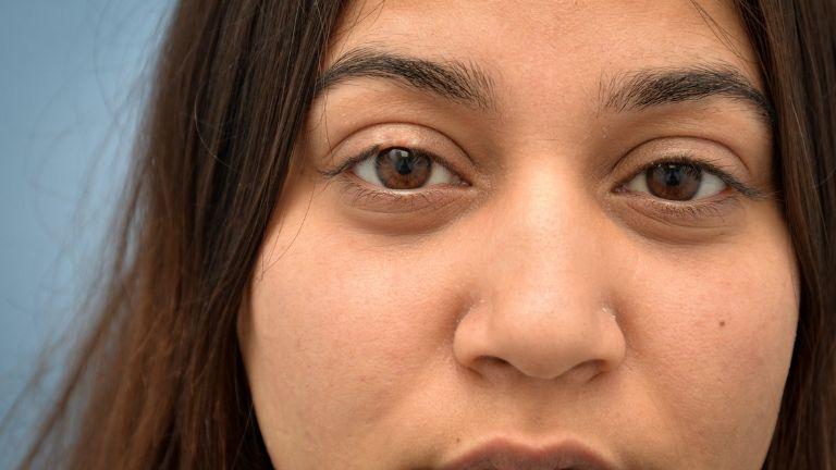 eyelash transplant - itinder kaur - close up before