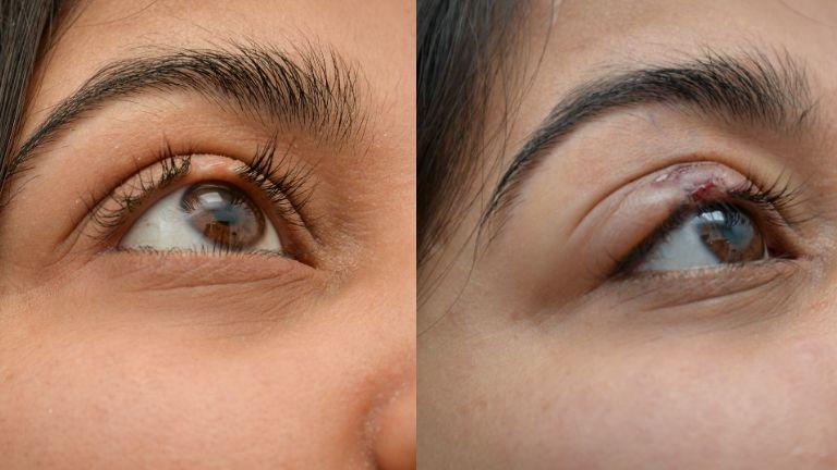 eyelash transplant - itiner kaur - before and after