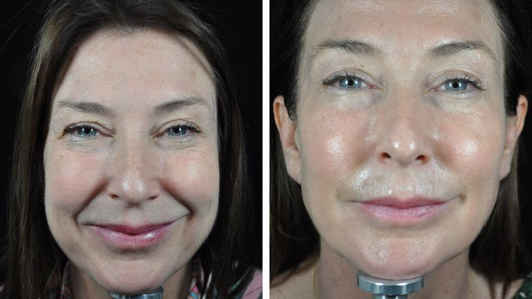 profhilo beauty jab - sharon front before and after - main