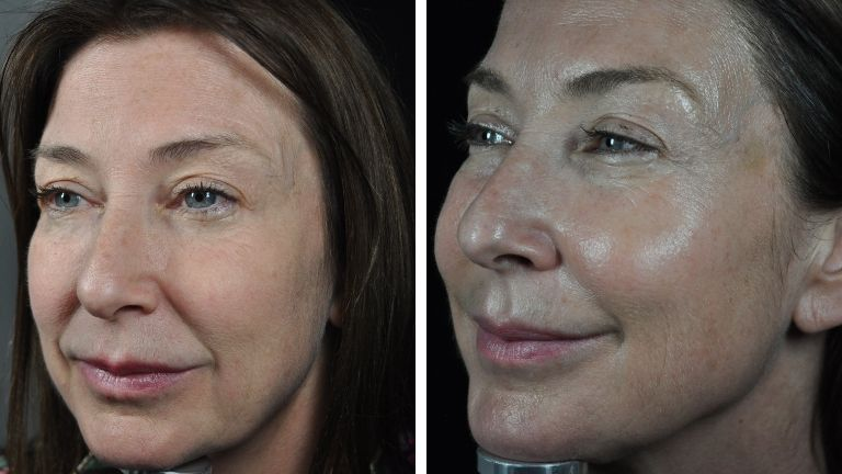 profhilo beauty jab - sharon side before and after