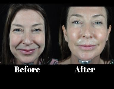 profhilo sharon before and after - featured