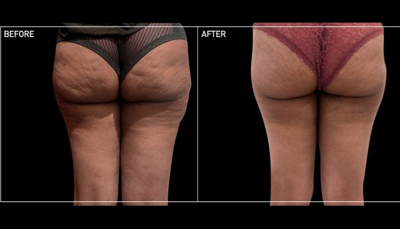 The new cellulite fix that changed my bum