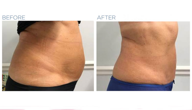 flat before-and-after-treatment-image-emsculpt-by-healthista.com