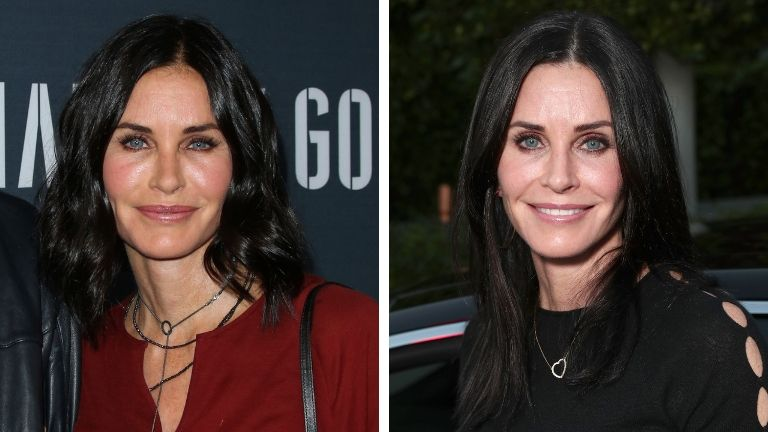 injectables - courtney cox before and after