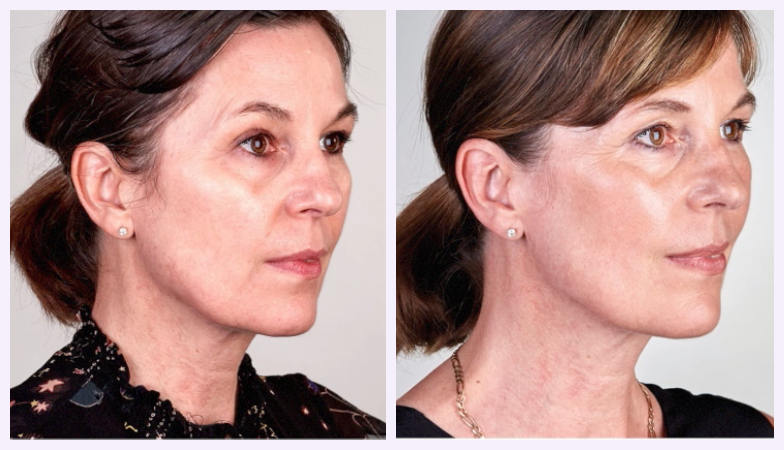 The new saggy skin fix that knocked 10 years off this woman's face