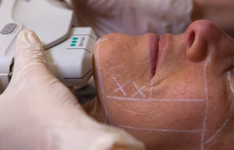 ulthreapy machine treatment healthista
