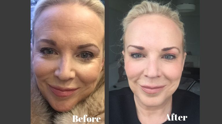 'I had too much botox - here's the treatment that fixed it' MAIN