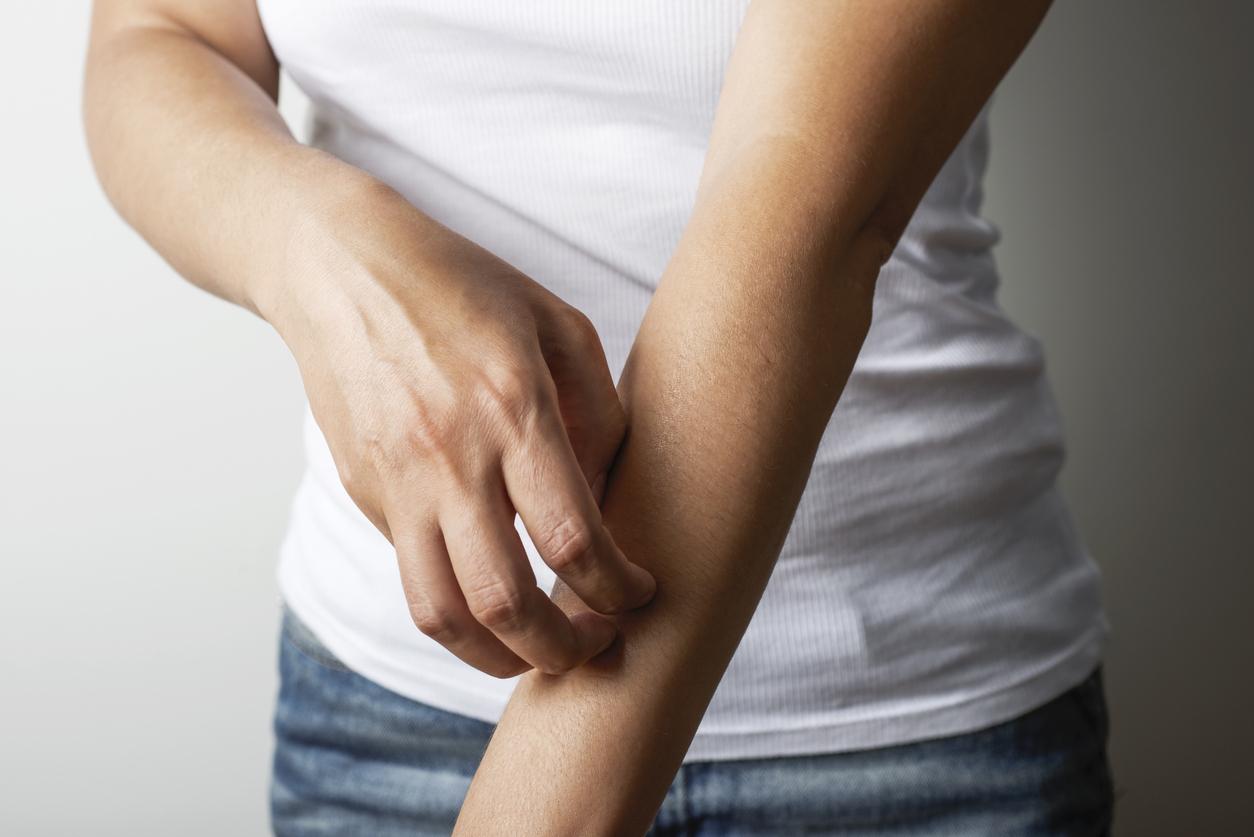 eczema scratch